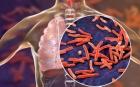 Boala care aşteaptă după blocuri. Medicii avertizează: Vom avea 1,4 milioane de decese în plus!