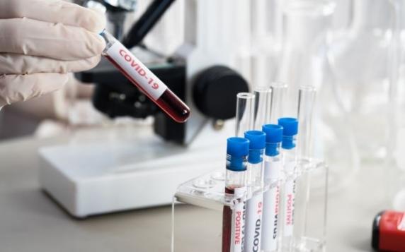 Studiu năucitor Scripps Research Institute! Anticorpii apăruţi după răcelile obişnuite neutralizeaza COVID-19 la majoritatea persoanelor