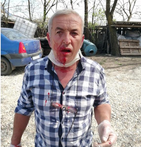 Un voluntar care actiona in scopuri umanitare a fost batut cu bestialitate de un primar pesedist in judetul Olt
