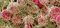 De ce dispar gustul și mirosul la unele persoane infectate cu SARS-CoV-2