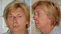 O femeie misterioasă, fără acte și care nu știe cum o cheamă, a fost găsită pe o insulă din Croația