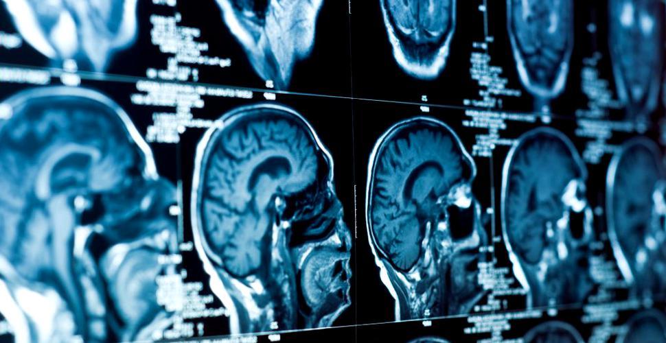 A apărut o boală misterioasă a creierului care îi îngrijorează pe medici
