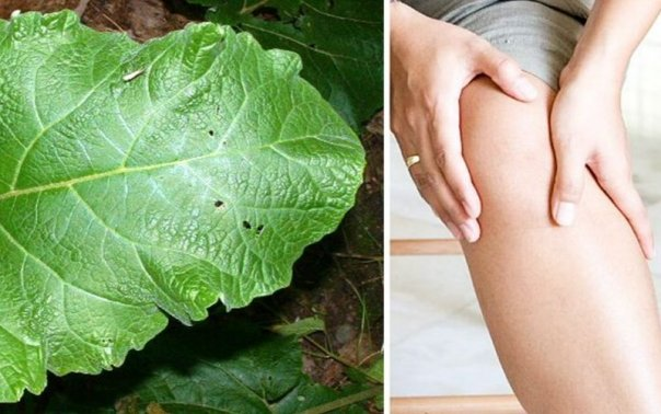 Tratament de brusture pentru durerile articulare