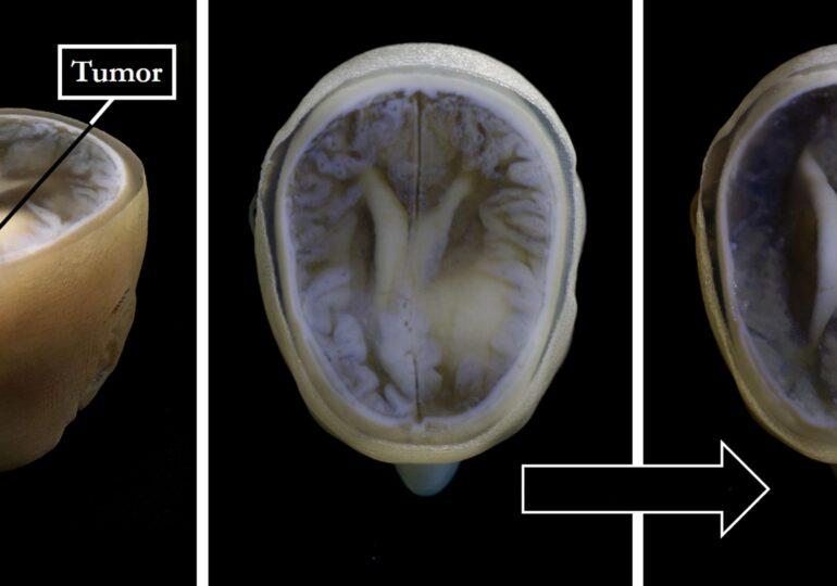 Premieră medicală: Un vaccin care tratează tumorile cerebrale a fost testat cu succes pe oameni